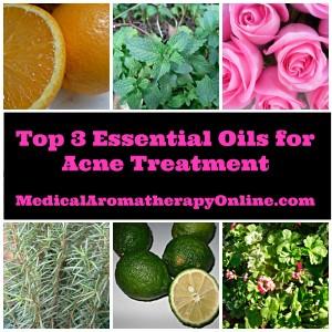 essential oils for acne